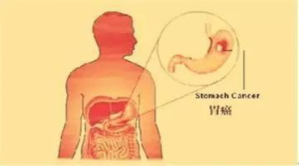 胃部图片结构图高清